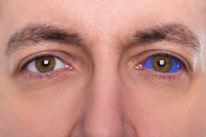 Image showing a closeup of a man with one normal eye and one eye with a blue sclera tattoo
